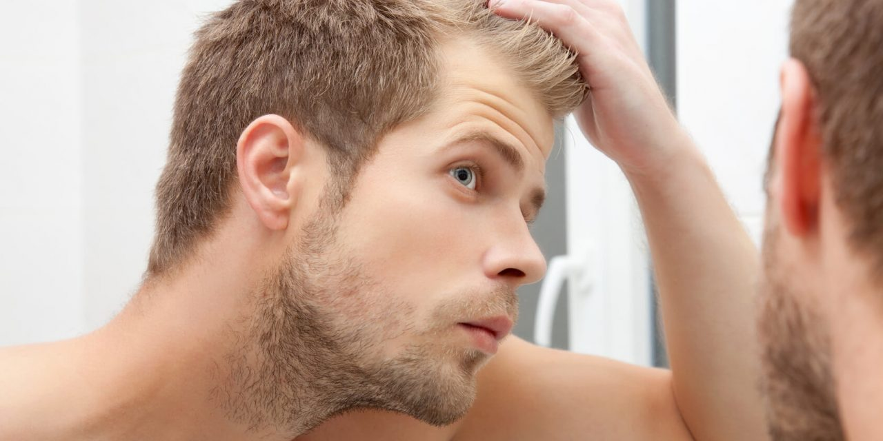 Top 10 Best Hair Loss Treatments for Men of 2019