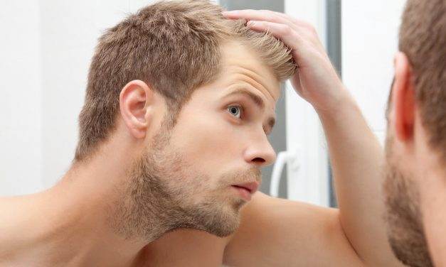 Top 10 Best Hair Loss Treatments for Men of 2017